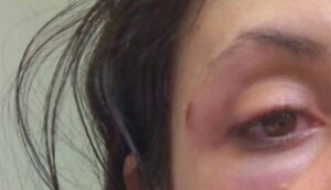 Marido tenta matar mulher sufocada após ser flagrado mandando fotos para outra